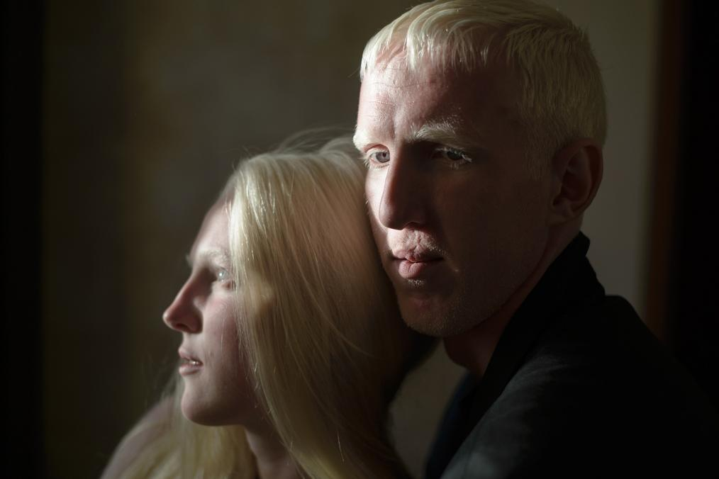 Albino Family, Loneliness Together