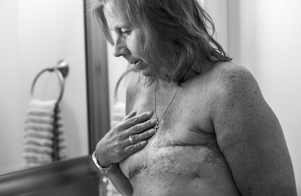 Breast Reconstruction Following Mastectomy
